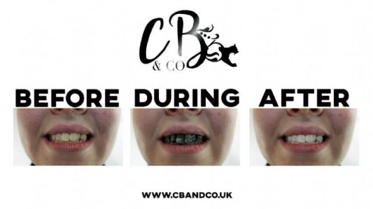 cb-co-extreme-whitening-gel-with-activated-charcoal-people4