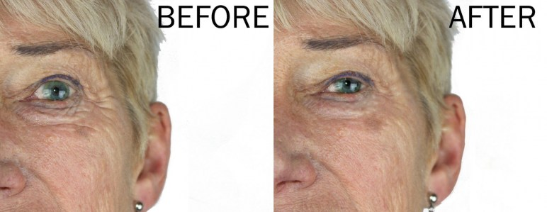 snake-venom-eye-serum-before-after9
